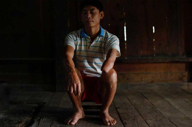 Lethal legacy of secret war in Laos (6)
