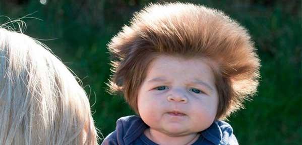 موهای پرپشت کودک