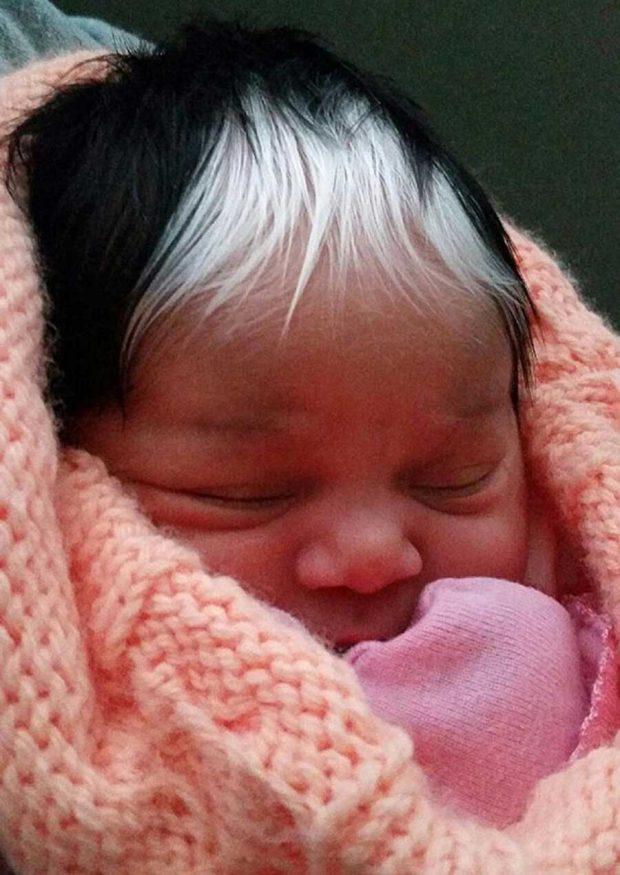 تصاویری از نوزادی با موهای سیاه وسفید در کارولینای جنوبی